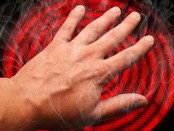 причины получения ожогов пальцев рук и ног
