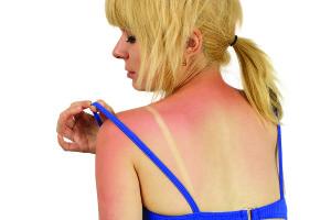 Сгорела спина на солнце