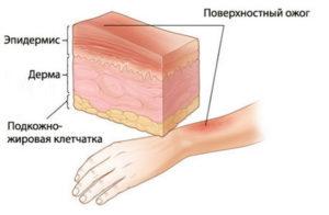 Повреждение от ожогов