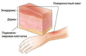 Повреждение кожного покрова