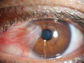 Ожог глаза сваркой