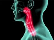 Степень поражение слизистых тканей горла при ожоге