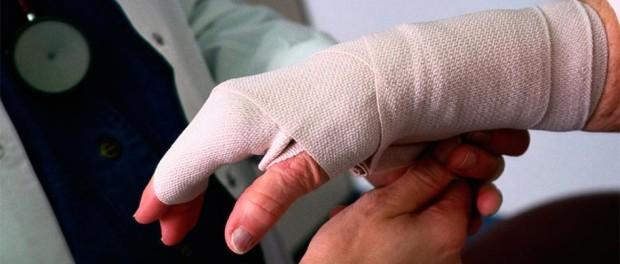 перевязанная рука при ожогах пальцев