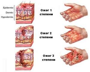 Степени повреждения пальцев рук и ног