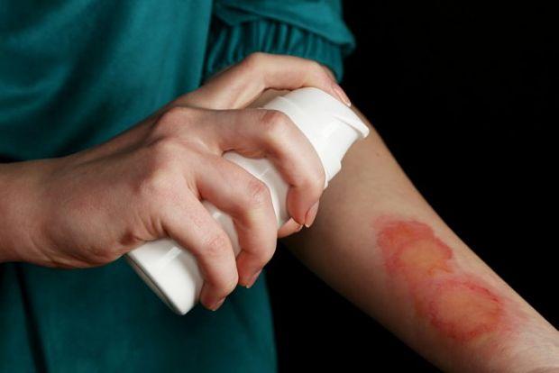 Обработка рана